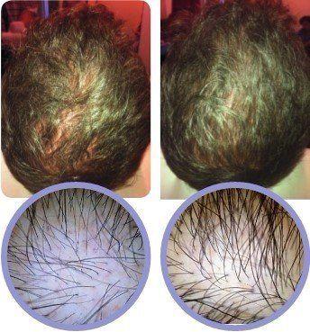 PRP Hair Loss in Croydon, Central London & Surrey