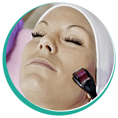 derma roller treatment for the face