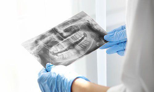 Dentista osserva una lastra radiografica