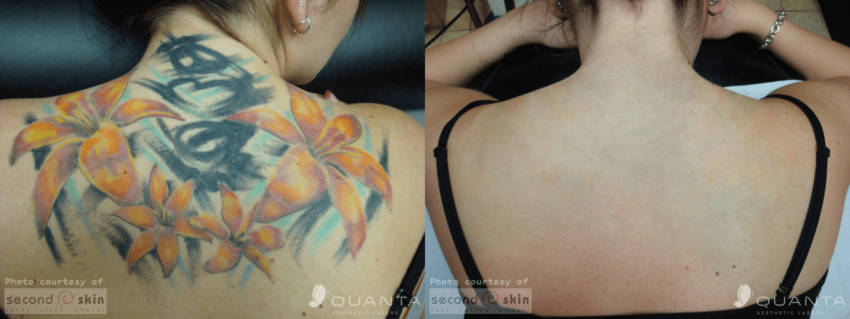 Laser Tattoo Removal in Fresno   California Vein & Laser Center