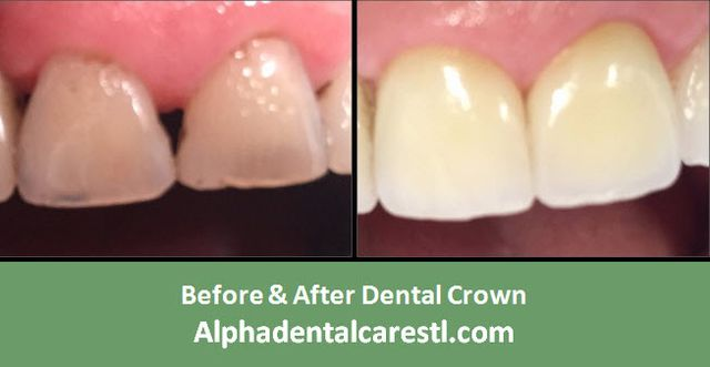 Before & After Dental Crown Example 1, Alpha Dental Care, St. Louis