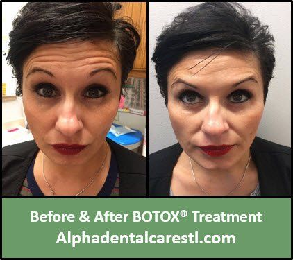 Before and After Botox Treatment on forehead lines, Alpha Dental Care in St. Louis MO