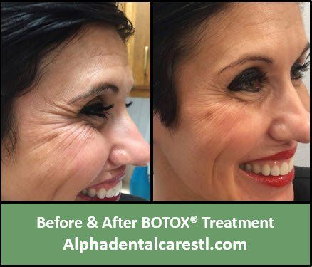 Before and After Botox Treatment on Lower Eyelid Wrinkles, Alpha Dental Care in St. Louis MO