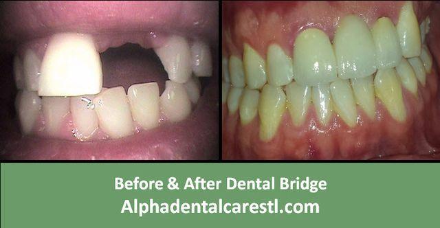 Bridges Before & After, Alpha Dental Care in St. Louis
