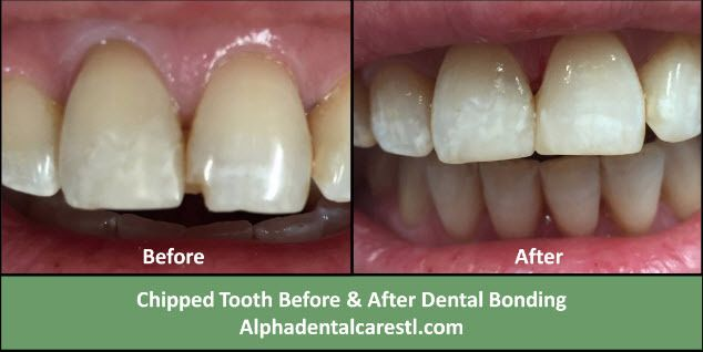 Dental Bonding Before and After, Alpha Dental Care St. Louis