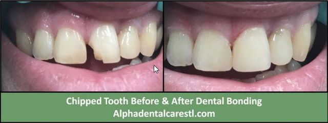 chipped tooth before and after dental bonding, Alpha Dental Care in St. Louis MO