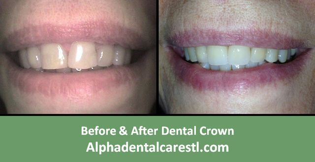 Before and After Dental Crown Example2, Alpha Dental Care in St. Louis