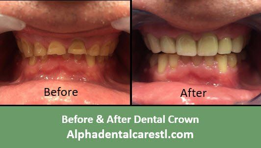 Before & After Dental Crown Example 3, Alpha Dental Care, St. Louis