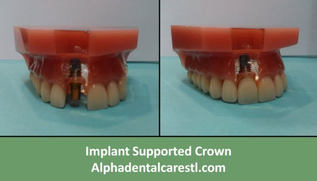 Implant Supported Crown, Alpha Dental Care St. Louis MO