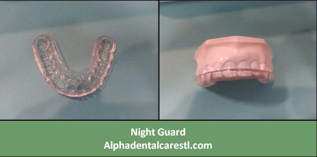 Night Guard, Alpha Dental Care St Louis