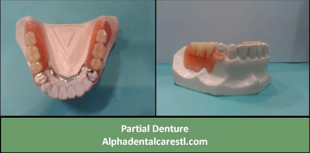 Partial Denture, Alpha Dental Care St. Louis MO