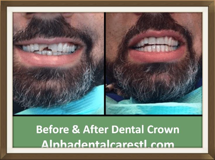 Dental Crown, Alpha Dental Care in St. Louis MO