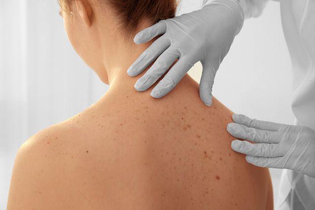 Dermatology   Skin Condition   Corpus Christi Allergy and Asthma