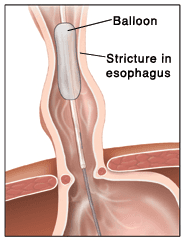 Esophageal Dilation