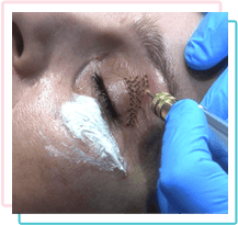 Cryotherapy Skin tags, Warts, Verruca removal