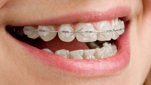 Dental Braces  applied by cosmetic dentistry experts in Chillicothe, OH