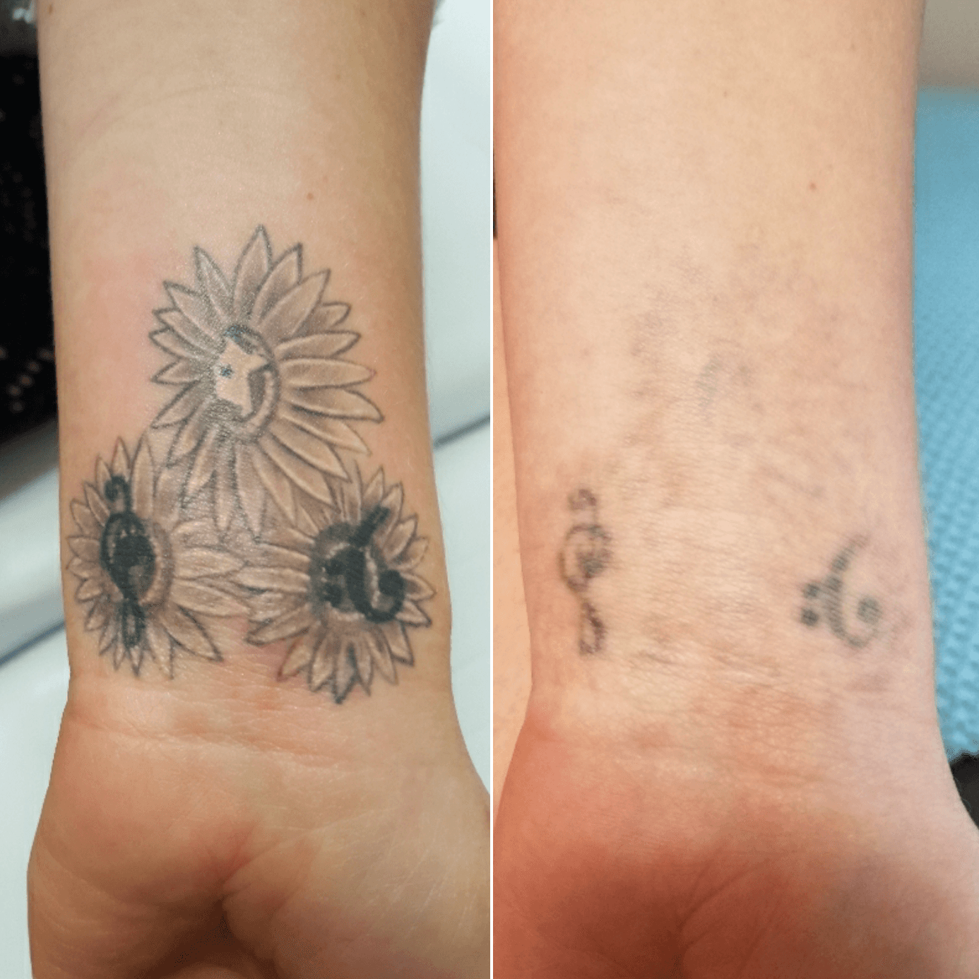 Before & After Tattoo Removal - Laser Focus Tattoo Removal