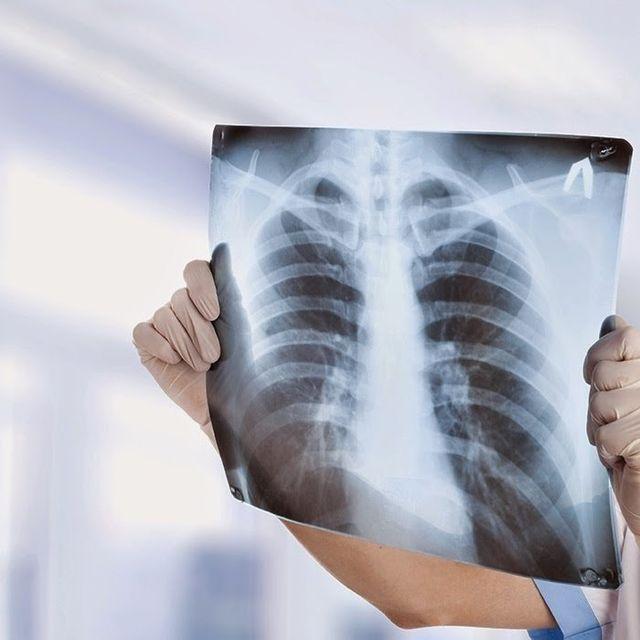 medico tiene in mano una radiografia al torace