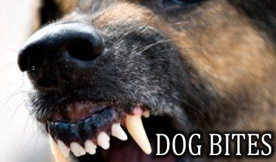 Vermont & NH Dog Bite Lawyer