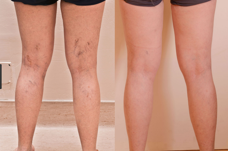 Spider Vein Treatment | Houston Vein Doctor