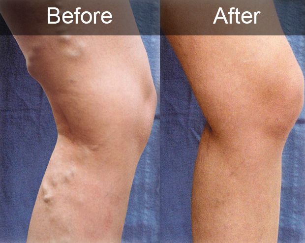 Before and After Varicose Vein Treatment | Houston Vein Doctor