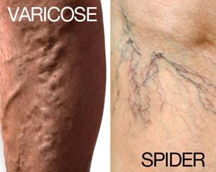 Varicose / Spider Veins | Houston Vein Doctor