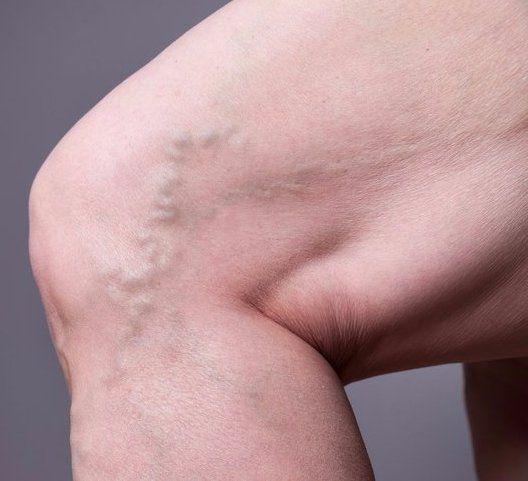 Varicose Vein Treatment | Houston Vein Doctor