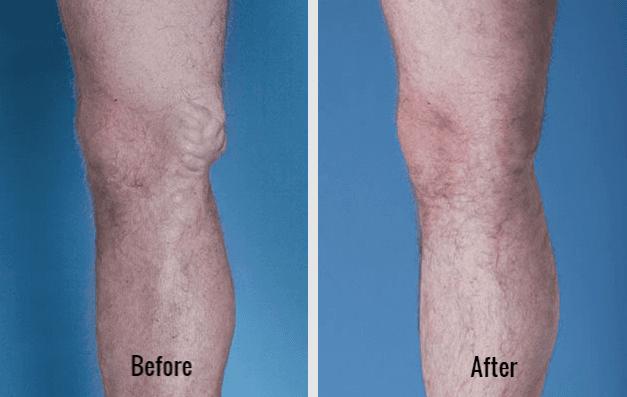 Varicose Vein Treatment Near You | Houston Vein Doctor