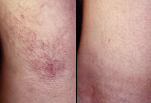 Benefits of Treatment | Spider Veins | HVD