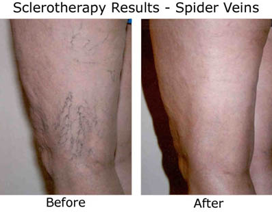 Spider Vein Treatment | Houston Vein Doctor