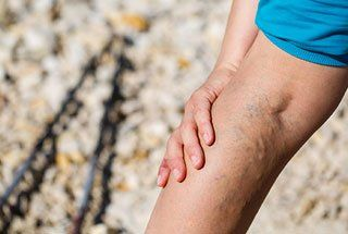 Person suffering from varicose veins | Houston Vein Doctor