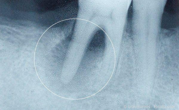 Backenzahn mit Entzündung an einer Wurzel (Röntgenaufnahme)