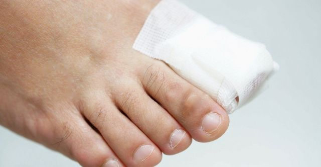 Ingrown Toenails: Everything Baton Rouge Patients Should Know