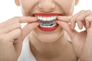 Orthodontics affordable braces in stamford darien new canaan invisalign diagram customized your dentist will take precise impressions and customize your aligners specifically for your teeth ccuart Choice Image