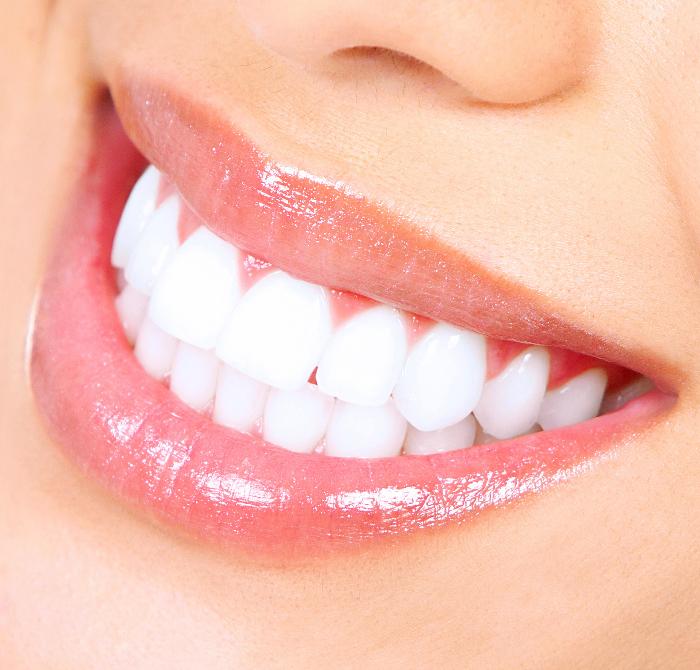 sorriso smagliante e denti bianchi di una donna