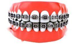 impianti a carico immediato, riparazione immediata protesi dentaria, studio dentistico