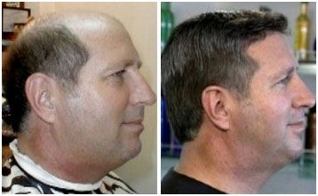 Before and after of a man's hair treatment