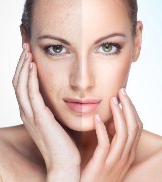 viso di donna giovane prima e dopo il trattamento