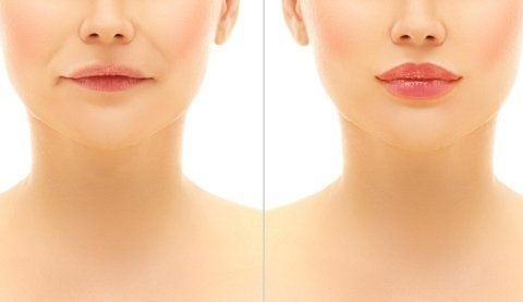 viso di donna con e senza rughe prima e dopo il trattamento
