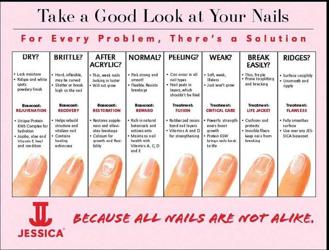 take a good look at your nails poster