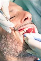 Man receiving treatment for Cosmetic Crown Lengthening to prepare for a crown by Nassau County Periodontist, Dr. Marichia Attalla in Williston Park, NY 11596