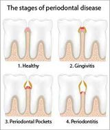 The stages of Periodontal Disease for gums in need of treatment of Gingivitis by Nassau County Periodontist, Dr. Marichia Attalla in Williston Park, NY 11596