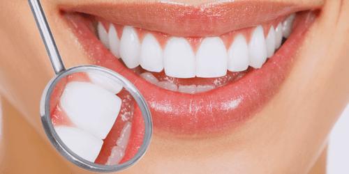 teeth check up
