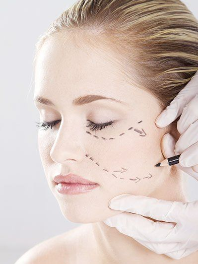 Facelift Surgeon in Metairie LA, Houma LA & New Orleans LA ...