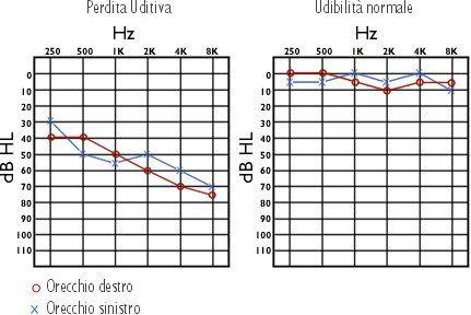 Grafici della perdita uditiva e dell'udibilità normale