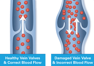 Varicose Veins Treatment in Corry, PA - DiMarco Vein Center