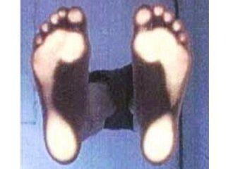 Analisi appoggio del piede