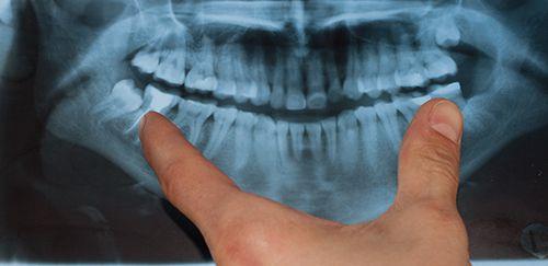 Dentist analyzing X-ray for gum disease treatment options in Pekin