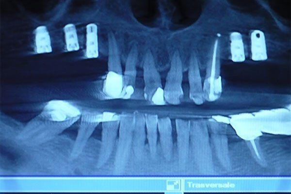 una radiografia dentale