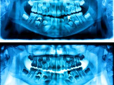 due radiografie dentali